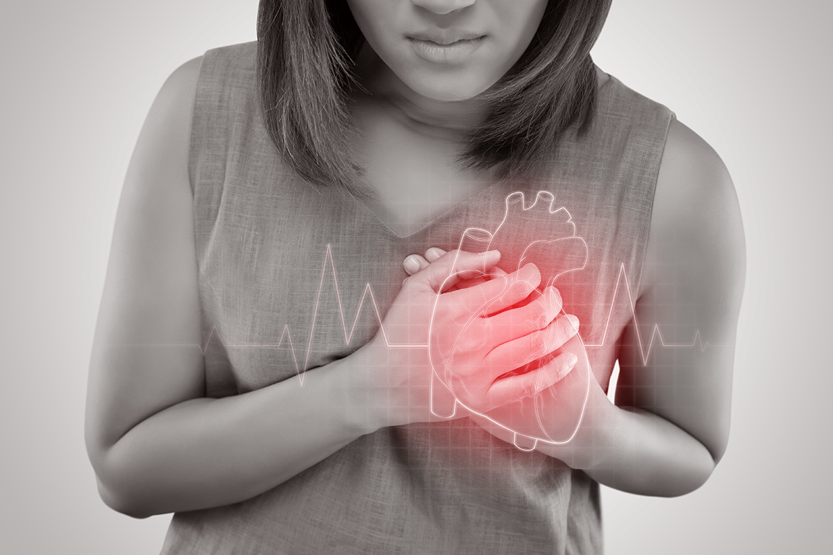 Use of MV PCI Increases, But Still Used in Minority of STEMI Patients, NCDR Study Finds