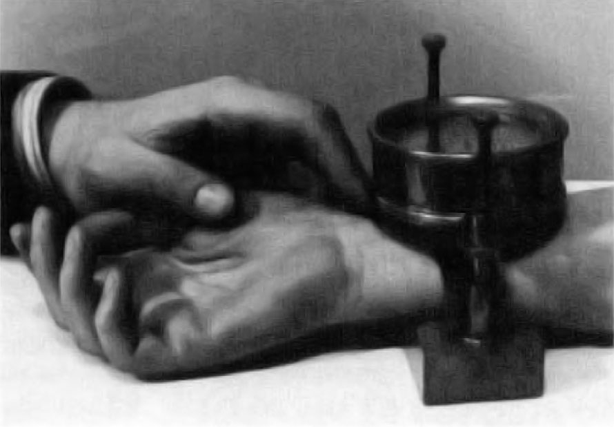Fig. I Pulse Controller. made by Castagna of Vienna. 1885. A clock measures the pressure of a screw type clamp required to ob­literate the arterial pulse at the wrist. Image included by permission of John Wiley and Sons, Inc. Further usage of any Wiley content that appears on this website is strictly prohibited without permission from Wiley and Sons, Inc.