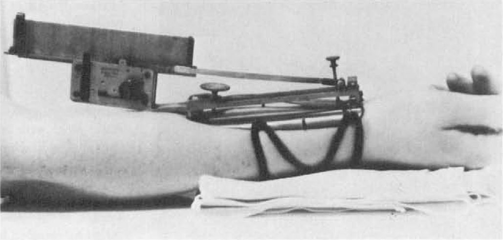 Fig. 5 Marey's Wrist Sphygmograph, 1857. This was the first clinical instrument by which the graphic method of registering the arterial pulse could be made in a living patient. Original instru­ment in the Reichert Collection, Cornell University Medical School. Image included by permission of John Wiley & Sons, Inc. Further usage of any Wiley content that appears on this website is strictly prohibited without permission from Wiley & Sons, Inc.