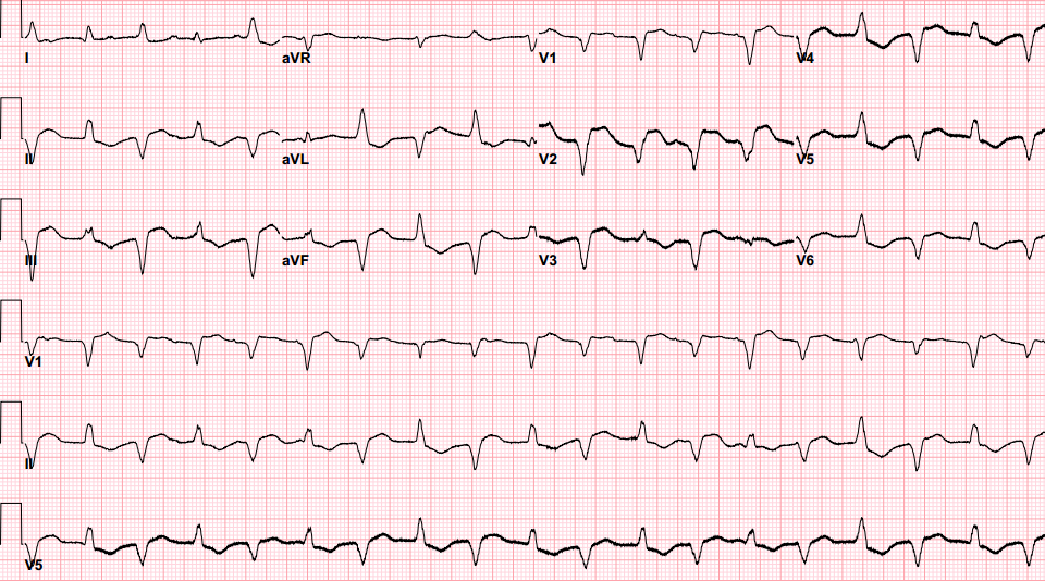 Does Bidirectional Ventricular Tachycardia Portend A More Fulminant Course In Acute Myocarditis Patient Case Quiz American College Of Cardiology