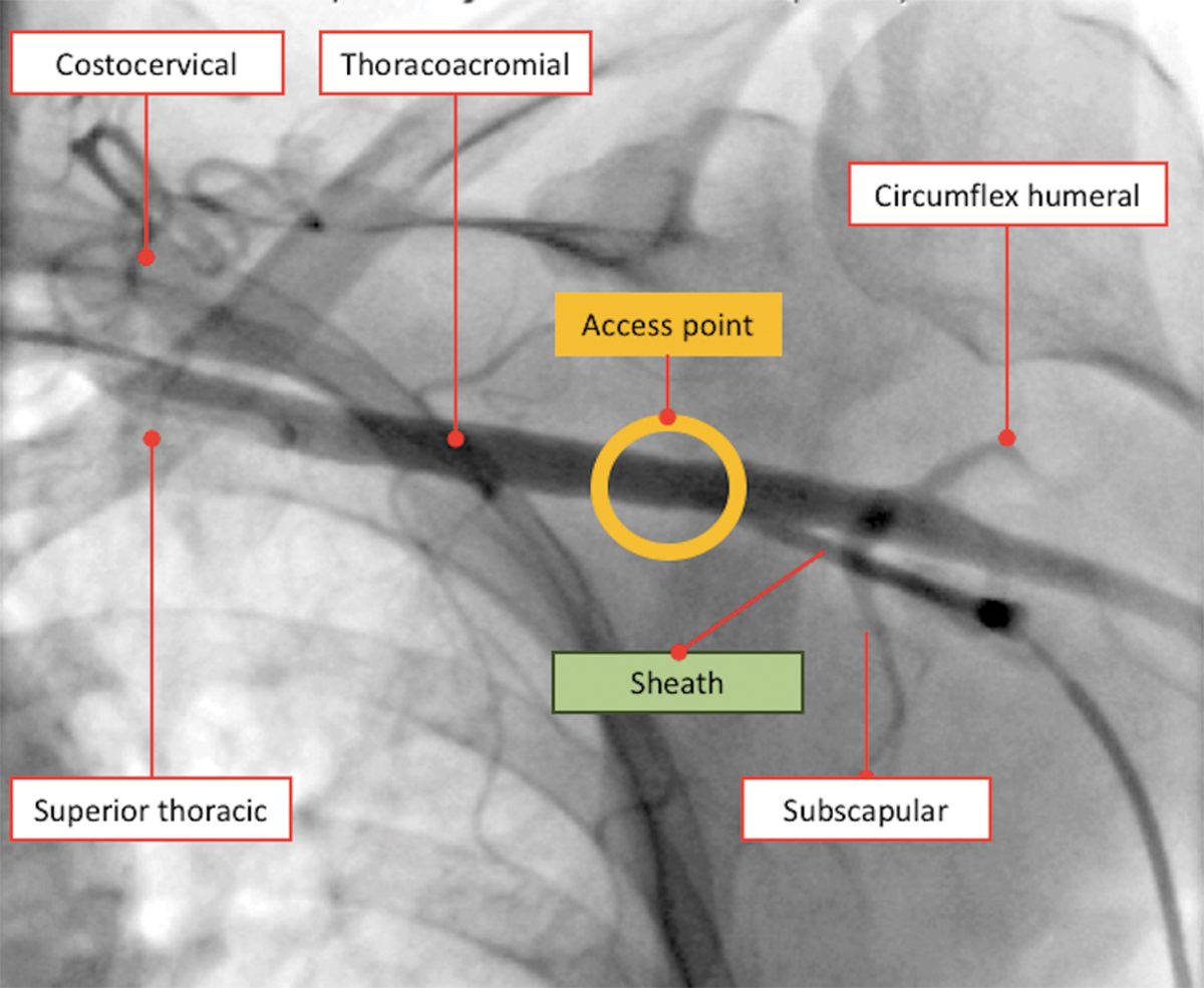 Peripheral Matters Axillary Artery Alternate Access For Large