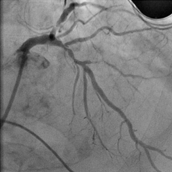 Complex Coronary Case Live From Mt. Sinai: Case #2