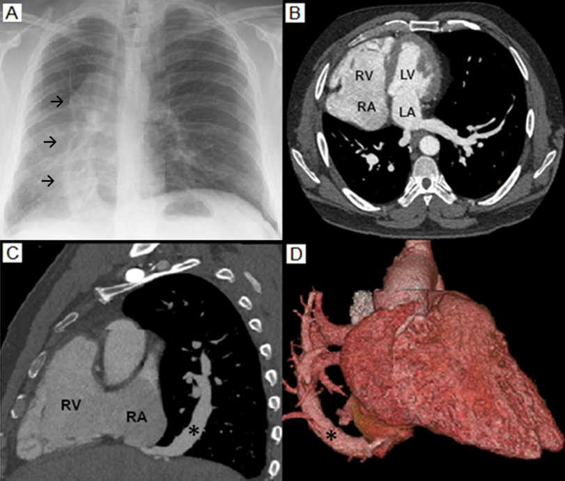Scimitar Syndrome: An Uncommon Cause of Dyspnea in Adults