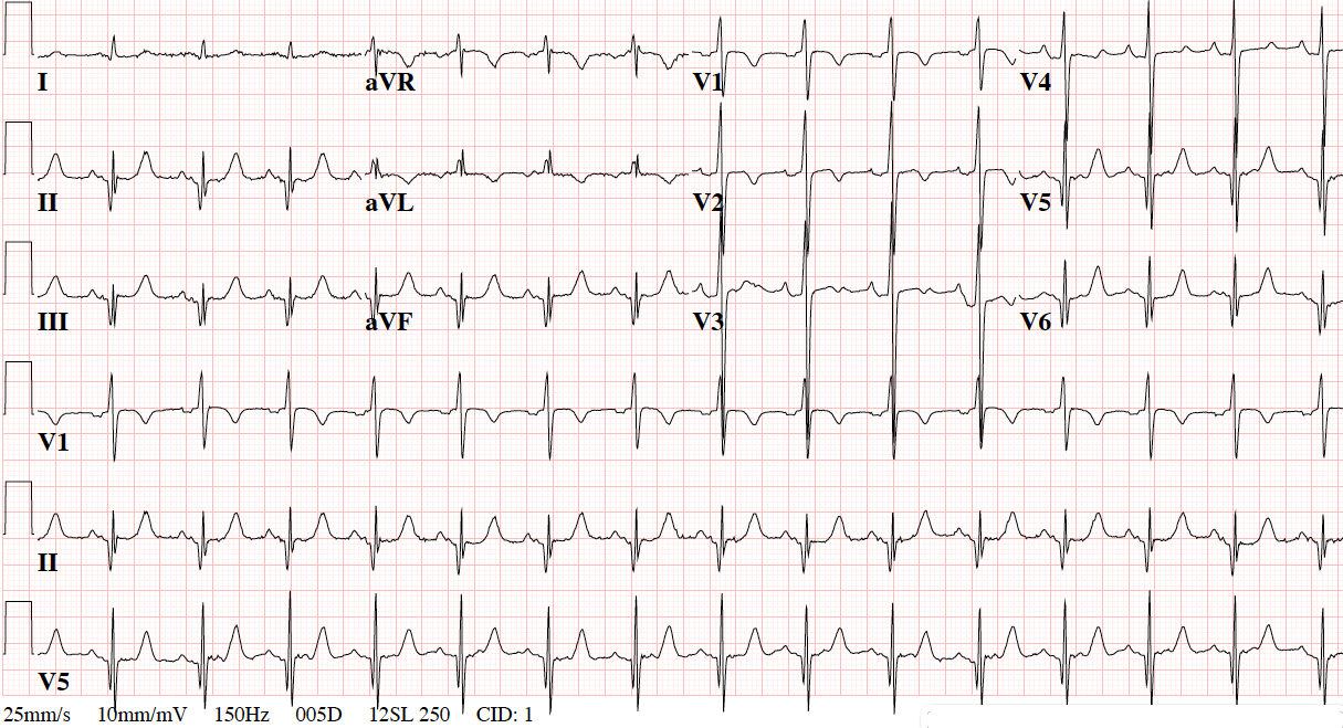 ECG of the Month: Lung Mass and Abnormal Preoperative ECG ...