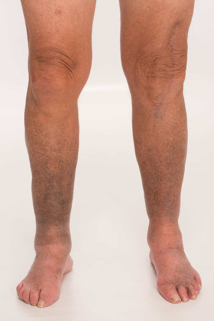 A 77-Year-Old with Cutaneous Hyperpigmentation and Lower ...