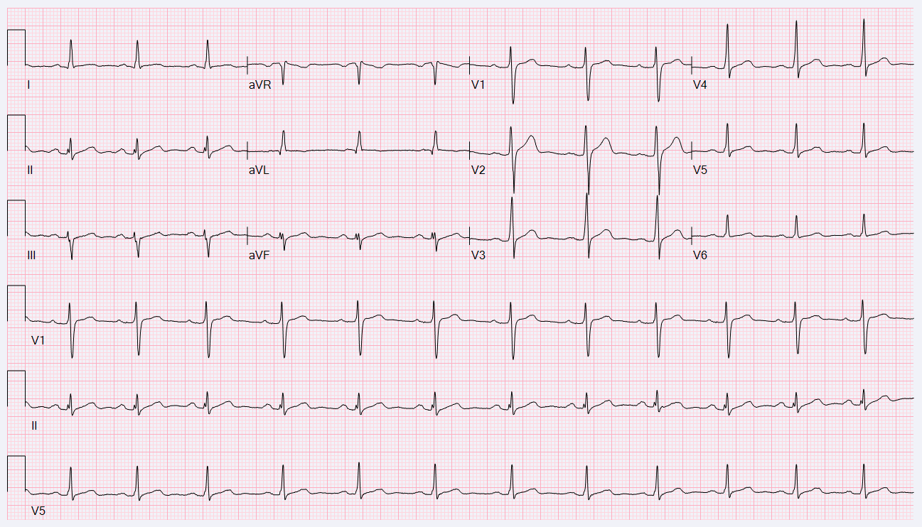 21-Year-Old Male With Transient Abnormal ECG - American