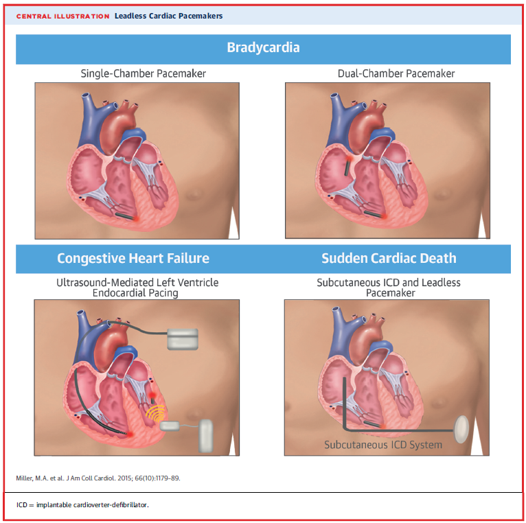 Permanent Leadless Cardiac Pacing American College Of Cardiology