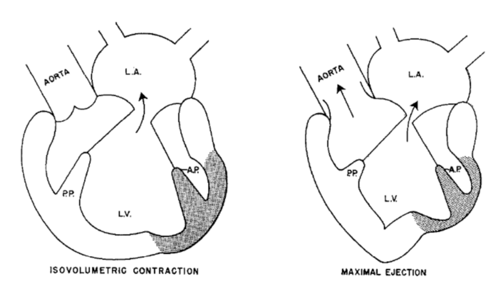 Mitral Valve Repair vs. Replacement for Ischemic MR: An Ongoing ...