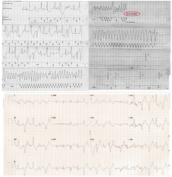 The Athlete With Catecholaminergic Polymorphic Ventricular Tachycardia American College Of Cardiology