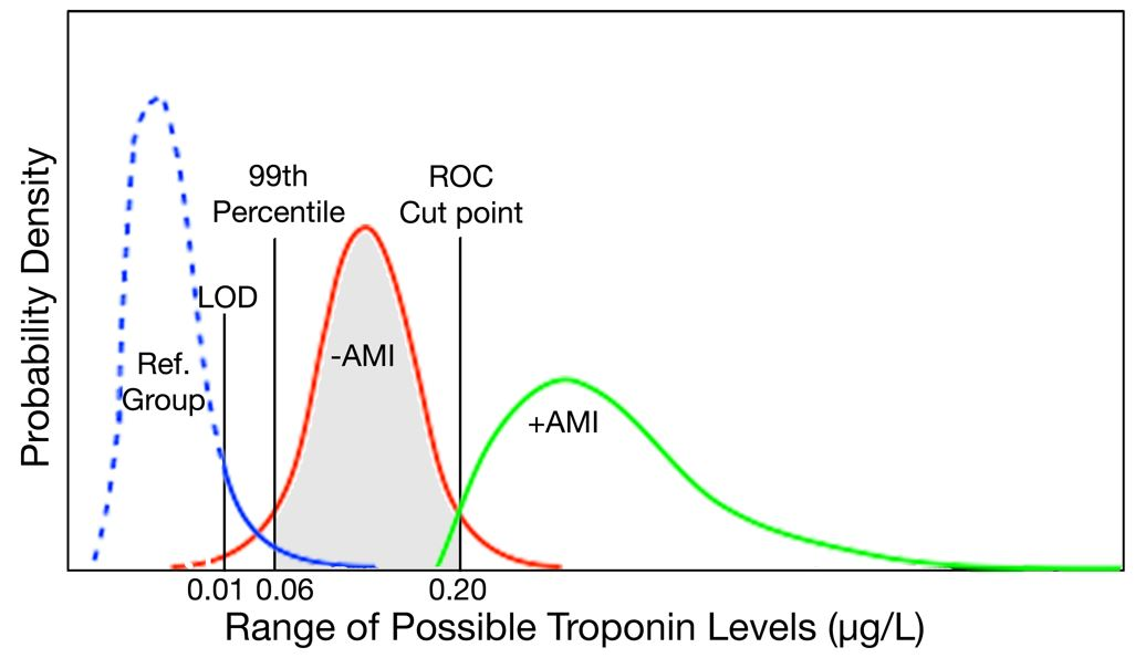 A Brief Review of Troponin Testing for Clinicians - American