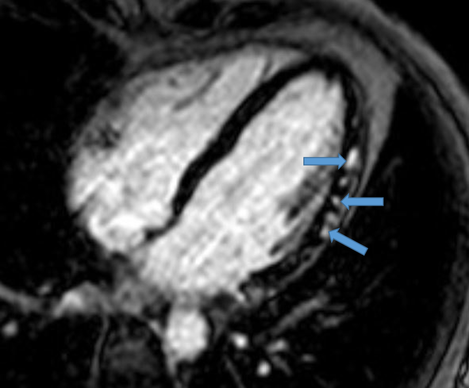 Myocarditis in the Athlete - American College of Cardiology
