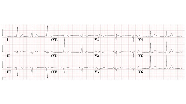 ECG of the Month: A Young Woman with Anterior and Inferior Infarction on an ECG
