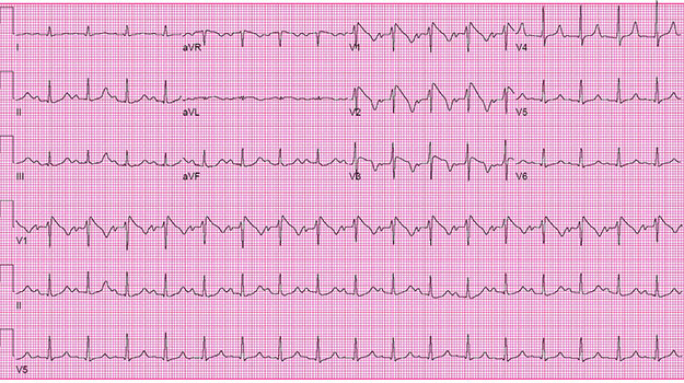 ECG of the Month: Law Student with Syncope