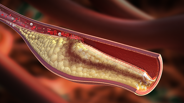 cholesterol artery plaque