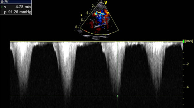 Doppler Still Frame Across the Right Ventricular Outflow Tract (RVOT) - A changing heart murmur