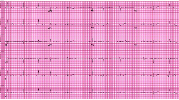 ECG of the Month