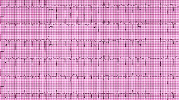 ECG of the Month: 48-Year-Old Man Presents with Fatigue, Dyspnea, and Palpitations
