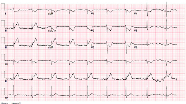 Patient Presents with Idiopathic Dilated Cardiomyopathy