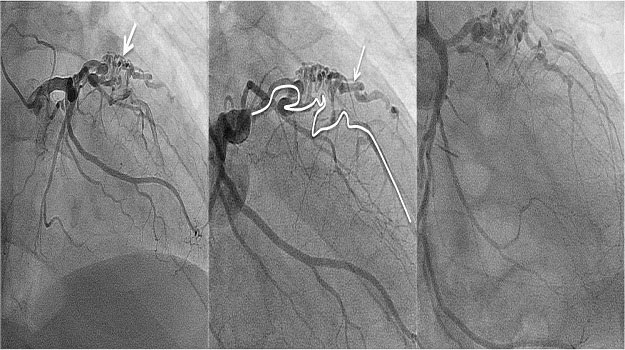 RAO cranial angiography revealing delayed angiographic filling of the distal LAD, likely a result of both multiple fistulous vessels and some degree of concomitant coronary artery disease
