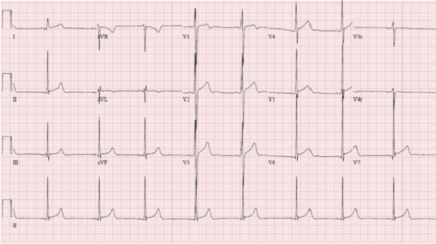Left Ventricular Hypertrabeculations
