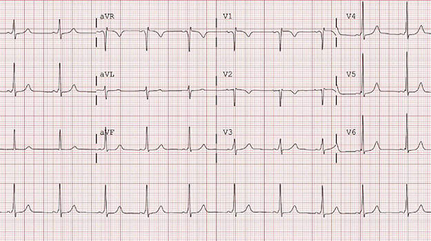 Pre-Excitation on an Electrocardiogram