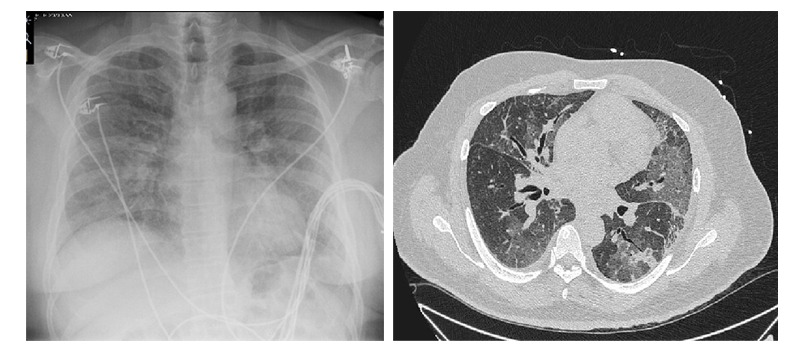A 60-Year-Old Male Presents With Shortness of Breath and Leg