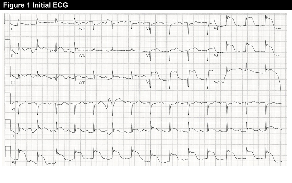 Treating a 55-Year-Old With Severe, Substernal Chest Pain