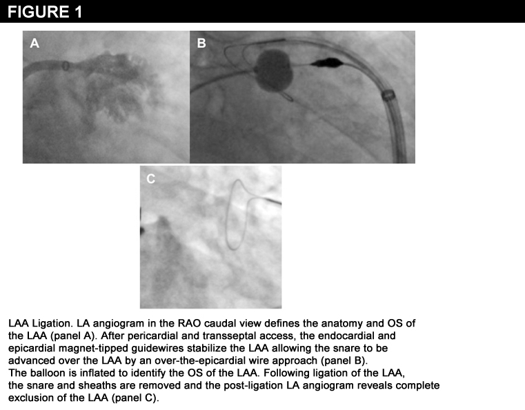 Figure 1: Left Atrial Appendage Exclusion Devices – Where Are They Going