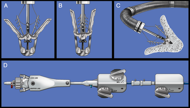 Figure 1: The MitraClip System